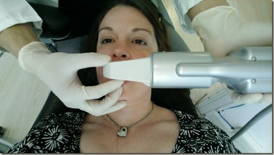 Getting my 3-D scan done with the Itero scanner as part of my Invisalign treatment.