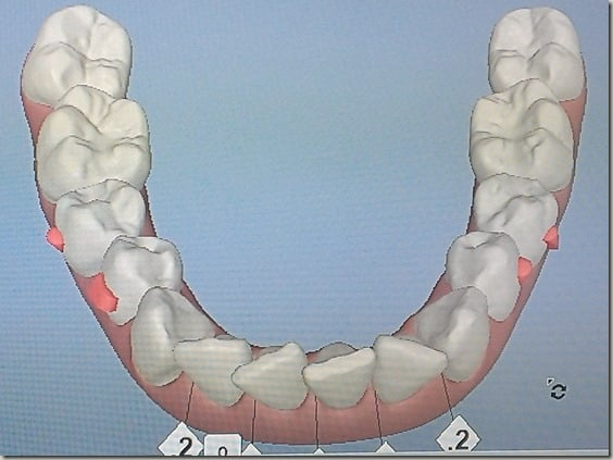 A 3-D scan of my bottom teeth showing results before Invisalign treatment.