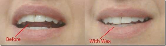 Invisalign treatment with wax