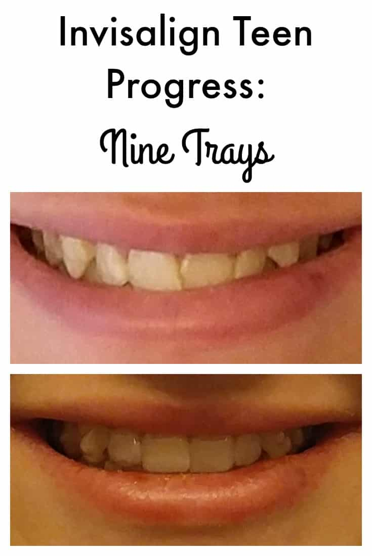 My daughter is on her ninth set of Invisalign trays, and I can already see a big difference! Fiona is having a really easy time of it, too. It's just routine now. I can't remember the last time I had to remind her to put her Invisalign trays back in. She's really motivated to do a great job.