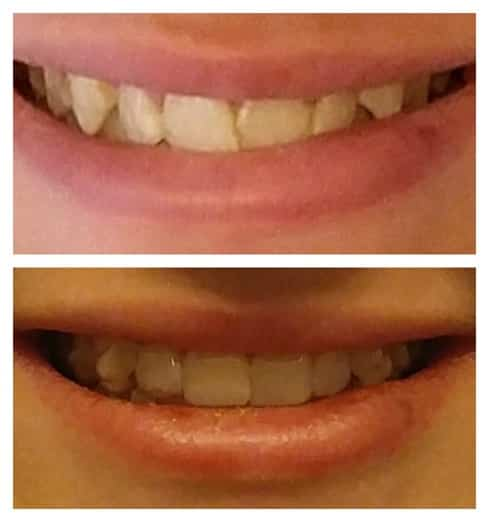 Invisalign Teen - tray nine progress, before and after