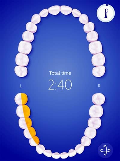 Philips Sonicare FlexCare Platinum Connected toothbrush - results