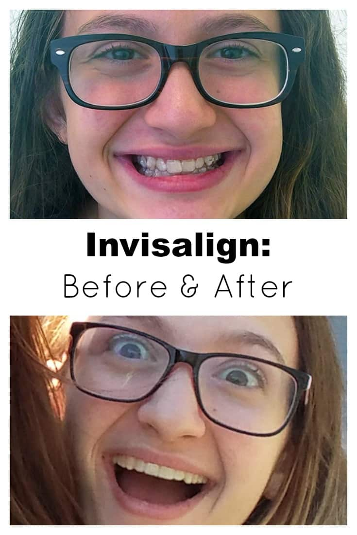 My daughter is on her last set of Invisalign clear aligners. I can't believe she's almost done! Her Invisalign before and after pictures are like night and day. Since she's almost finished with her treatment I thought I'd take this opportunity to address some common misconceptions about Invisalign vs. Braces, such as cost, time, and what can be treated. And if you have any questions please don't hesitate to ask!