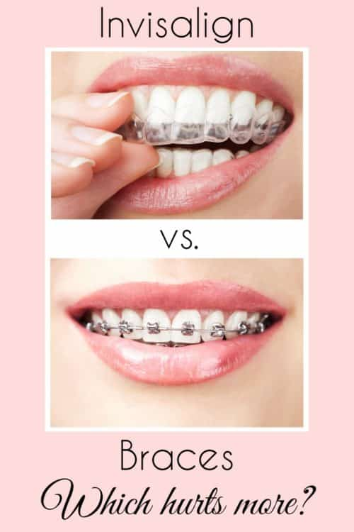 Which hurts more, Braces or Invisalign? My daughter and I have both had Invisalign, and I've talked to some friends about their experiences with braces. Here's what we have to say.
