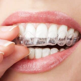 Which Hurts More: Invisalign or Braces?