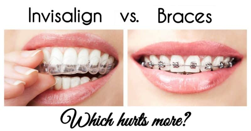 Which Hurts More: Invisalign or Braces? | Amy Ever After